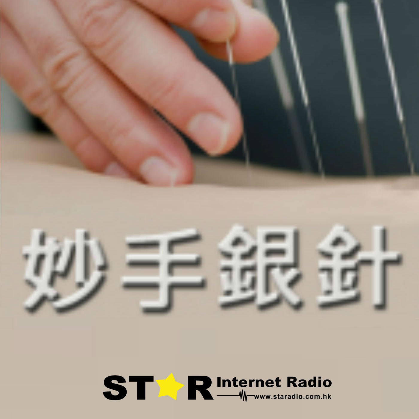 星滙網 Star Internet Radio » 妙手銀針